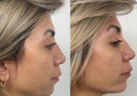 Reconturarea mandibulară,  cea mai solicitată procedură a anului 2021