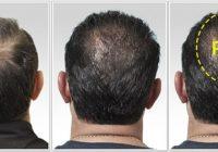 Stop căderii părului!  Totul despre terapia PRP!