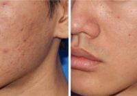 Dimunează urmele lăsate de acnee prin Microneedling, la Beauty Art Aesthetics!