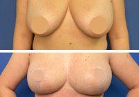 Reducţia mamară,  Totul despre operaţia de micşorare a sânilor